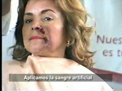 Maquillaje efectos especiales - Herida  en el rostro