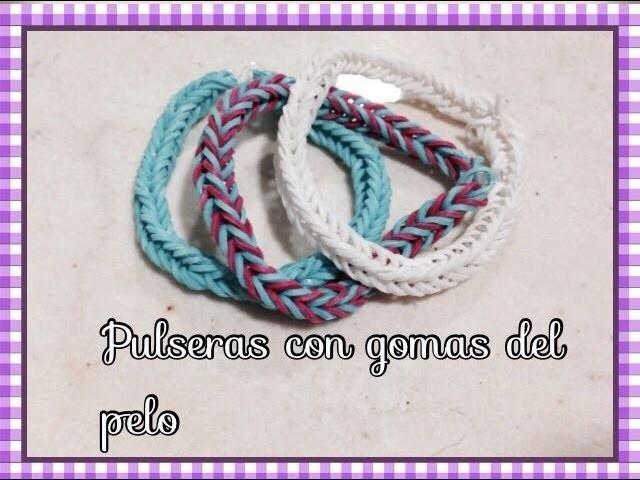 Loom Bands pulseras con gomitas.peeling rubber bracelets