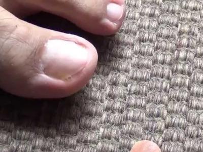 Cómo quitar hongos en uñas de pies y manos en sólo 6 semanas con Dióxido de Cloro PLACITUM