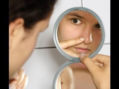 Puntos negros de la nariz como eliminarlos