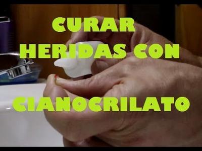 Curar heridas con cianocrilato. Pegar heridas con Loctite. Brico.es DIY